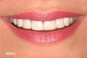 Columbus Top Smile Transformation - Gallery image 1 after