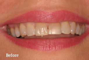 Columbus Top Smile Transformation - Gallery image 1 before