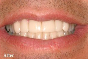 Columbus Top Smile Transformation - Gallery image 2 after