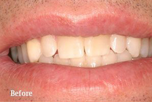 Columbus Top Smile Transformation - Gallery image 2 before