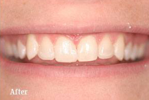 Columbus Top Smile Transformation - Gallery image 3 after