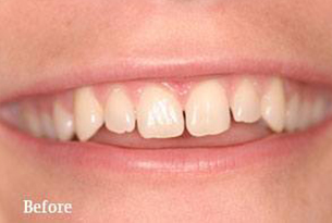 Columbus Top Smile Transformation - Gallery image 3 before