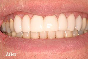 Columbus Top Smile Transformation - Gallery image 4 after