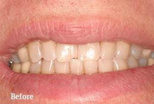 Columbus Top Smile Transformation - Gallery image 4 before