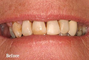 Columbus Top Smile Transformation - Gallery image 5 before