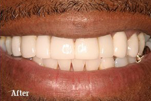 Columbus Top Smile Transformation - Gallery image 6 after