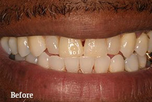 Columbus Top Smile Transformation - Gallery image 6 before
